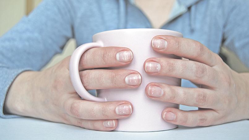 NAPSI  Индекс  тяжести псориатического поражения ногтей