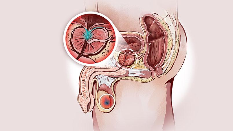Гострий простатит лечение уро простатита